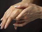 Pet stvari koje ruke mogu odmah otkriti o vašem zdravstvenom stanju