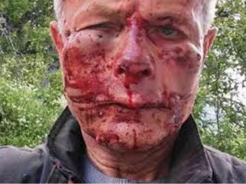 Hrvatski povratnik u Konjicu brutalno pretučen