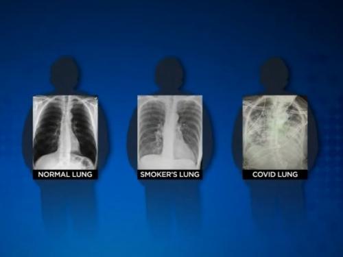 Liječnica uporedila pluća poslije koronavirusa i pluća pušača