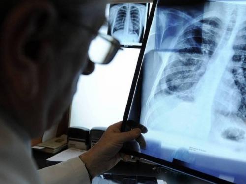 Zadržite dah više od 10 sekundi i ako to možete uraditi bez kašljanja, nema infekcije