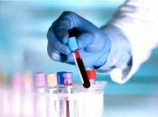 Test otkriva rak četiri godine prije pojave simptoma