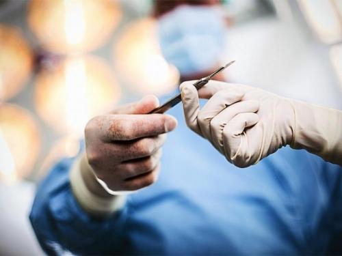 Kirurg laserom pisao svoje inicijale na transplantiranim jetrama