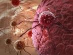 Stručnjaci tvrde da je jedna namirnica jača od kemoterapije