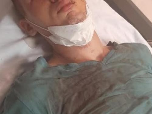Mostarac koji je brutalno pretučen u Konjicu: Govorili su ''vidi ga, j*** majku, još je živ''