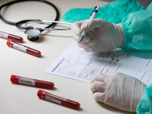 Hrvat će šest mjeseci davati krv znanstvenicima kako bi otkrili tajnu koronavirusa