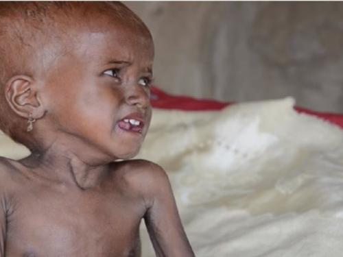 UN upozorio: U Jemenu je gotovo 8,5 milijuna ljudi gladno