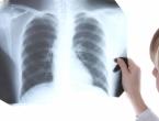 Od karcinoma pluća u BiH godišnje oboli 1.500 osoba