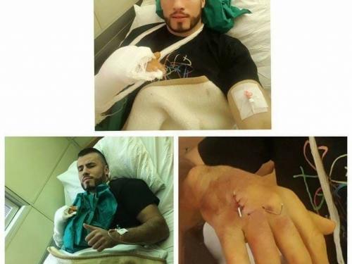 Damir Beljo nakon operacije šake: Neće me ni ovo slomiti, vratit ću se još jači!