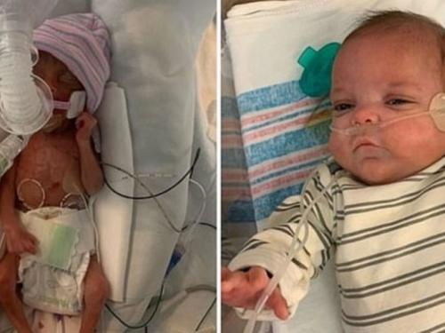 Ide kući nakon 133 dana u bolnici: Čudesna beba rođena sa samo 453 grama