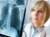 Hrvatska: Softver za očitavanje CT-a pluća uštedjet će radiolozima tisuće sati