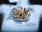Kakve posljedice na zdravlje ostavlja pušenje samo jedne kutije cigareta dnevno?