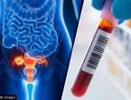 Osam vrsta karcinoma koji sve češće pogađaju mlade ljude