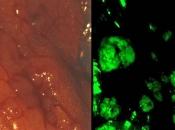 Znanstvenici: Napokon znamo zašto se rak vraća u smrtonosnom, metastatskom obliku