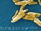 WHO: Tuberkuloza vodeći uzrok smrti