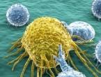 10 simptoma koji bi mogli upućivati na to da imate rak