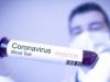 Hrvatska: Nema novooboljelih od COVID-19, preminula još jedna osoba