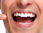 Znanstvenici otkrili kako na prirodan način spasiti svaki zub