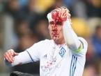Vida krvavog lica: Stravičan prizor glave hrvatskog stopera nakon teškog sudara