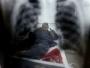 WHO: Prošle godine od tuberkuloze oboljelo 10 milijuna ljudi