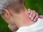 Ubod komarca: 7 pomagača koji odmah uklanjaju svrbež i crvenilo