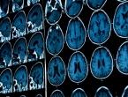 Američki znanstvenici: Moždane stanice mogu se razviti i u starijih ljudi