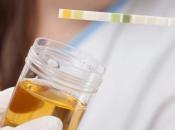 Najnoviji testovi urina mogli bi pomoći u tretiranju raka prostate