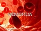 Znate li što je hemofilija?
