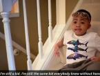 Prvo dijete na svijetu kojemu su presađene obje ruke može samostalno jesti