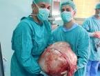 Banjalučki doktori odstranili tumor težak 31 kilogram