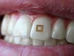 Znanstvenici osmislili senzor na zubu koji bilježi unos hrane