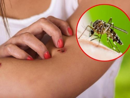 Kako se na jednostavan način zaštititi od komaraca