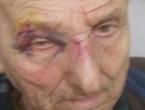 Hrvatu Nikoli Đuriću slomljena čeljust, tvrdi da je napad na nacionalnoj osnovi