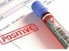 Znanstvenici tvrde da su pronašli novi lijek za HIV