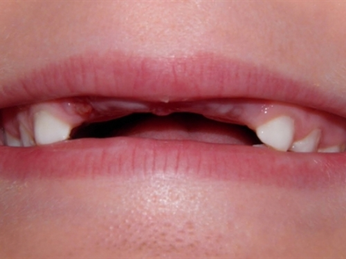 Ruski zubar ženi povadio 22 zdrava zuba