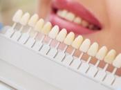 Nije samo nedostatak higijene, zbog ovoga će vam isto požutjeti zubi
