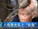 Liječnici u šoku: Ova starica ne želi operirati svoj rog