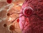 Rak postao vodeći uzrok smrti u bogatim zemljama